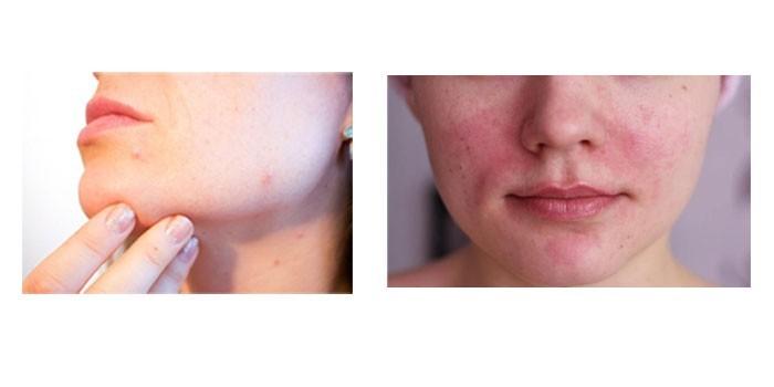 Прыщи и покраснения на коже лица