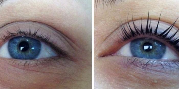 Глаз до и после ботокса