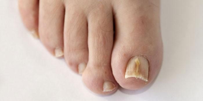 Грибок ногтей на ногах - фото, лечение и симптомы