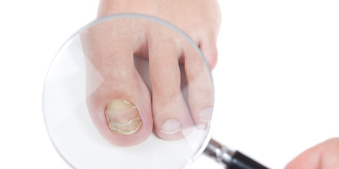 Грибок ногтей лечение пластырем
