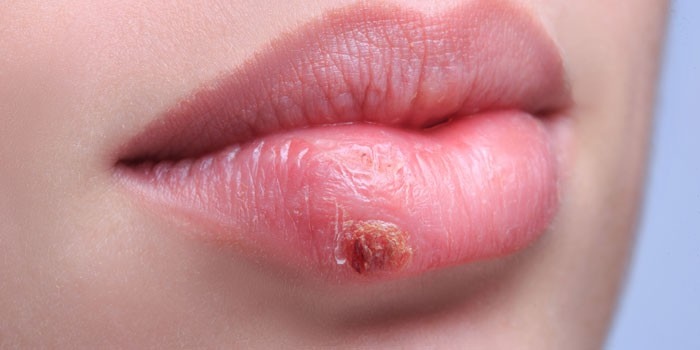Проявление герпеса на губе