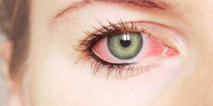 Воспаленный глаз у девушки