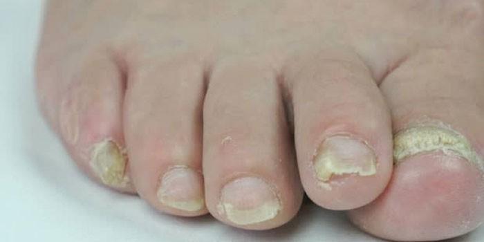 Онихомикоз ногтей на ногах