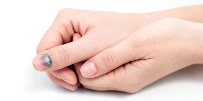 Синяк под ногтем на руке