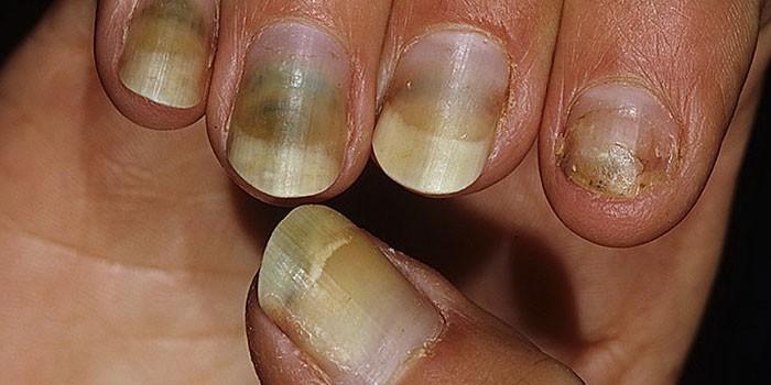 Пораженные болезнью ногти на руке