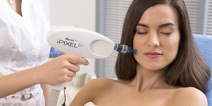 Девушка на процедуре лазерной шлифовки лица