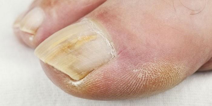 Вылечить грибок ногтей народными средствами быстро