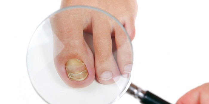 Грибок ногтей на ноге под лупой