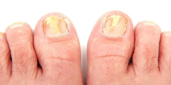 Грибок между пальцами ног йод - О грибке ногтей