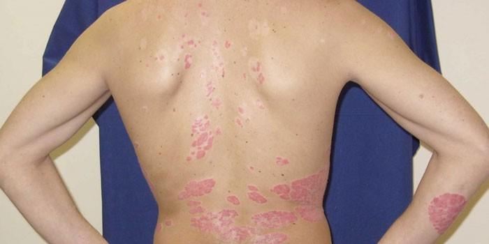 Проявления псориаза на теле у мужчины