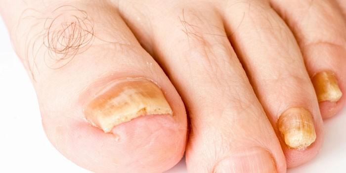 Пораженные грибком ногти на ногах