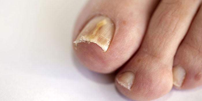 Грибок ногтей на ноге
