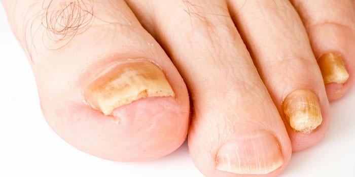 Пораженные грибком ногти