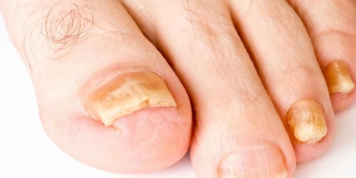 Как лечить грибок ногтей на ногах: лечение в домашних условиях