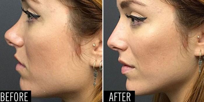 Фото носа до и после коррекции