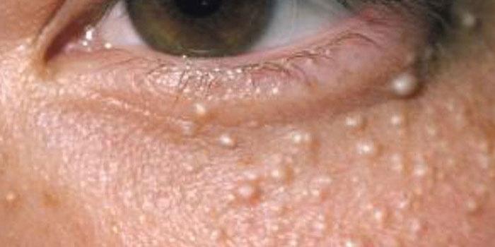 Жировики или липомы под глазами