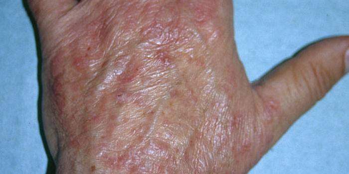 Дерматофития на коже руки