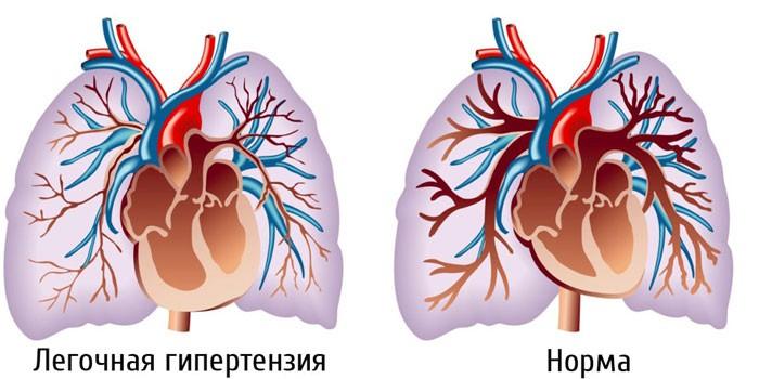 Легочная гипертензия и здоровое сердце