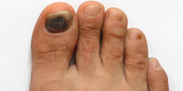 Черный ноготь на ноге