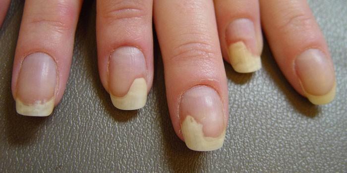 Ногти пораженные онихолизисом
