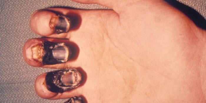 Некроз пальцев чумы на руке