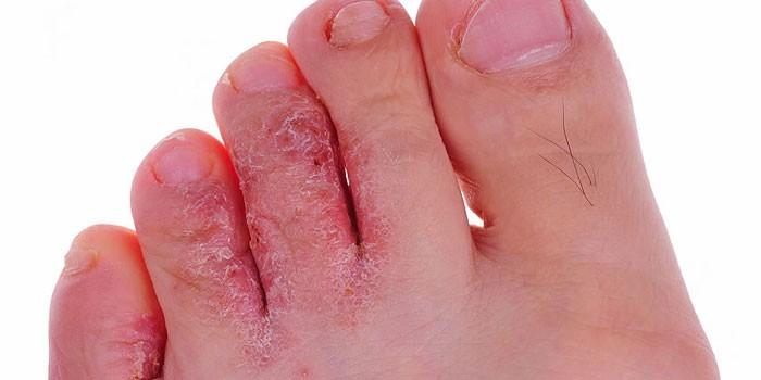 Кремы и мази от грибка на ногах между пальцами