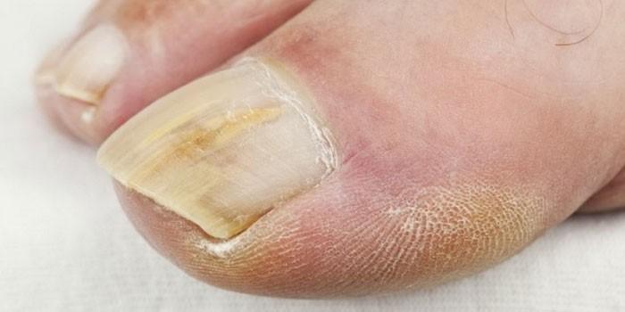 Местное лечение грибка ногтей