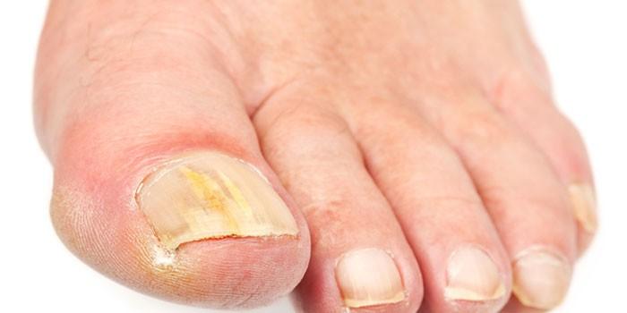 Как определить грибок на ногтях ног - первые признаки и проявления, методы диагностики и отличия от ушиба