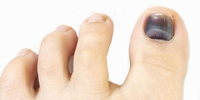 Синие пятна под ногтями на ногах 6