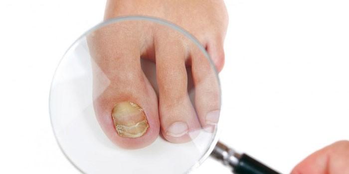 Ноготь большого пальца ноги пораженный грибком