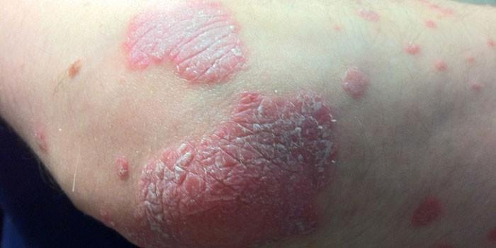 Грибок кожи на локте у человека