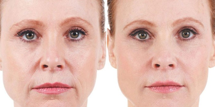 Лицо женщины до и после уколов красоты