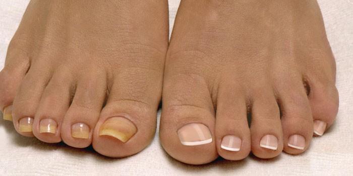 Желтые ногти на одной ноге у женщины