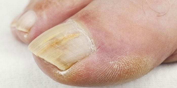 Какой врач занимается ногтями