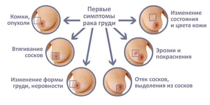Первые признаки рака груди