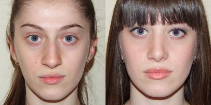 Лицо девушки до и после процедуры плазмолифтинга