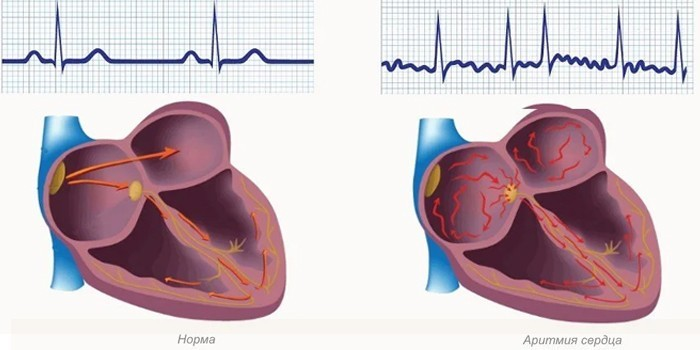 Норма и аритмия сердца