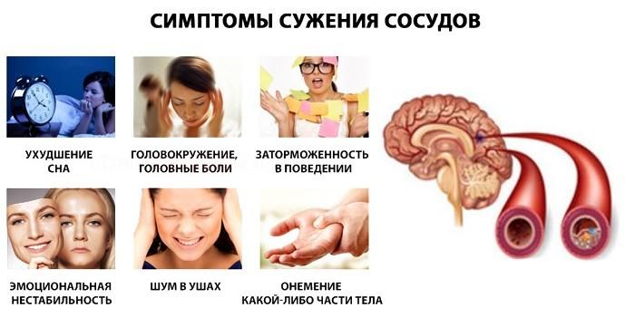 Симптоматика атеросклероза сосудов головы