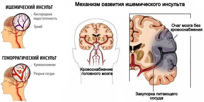 Геморрагический и ишемический инсульты