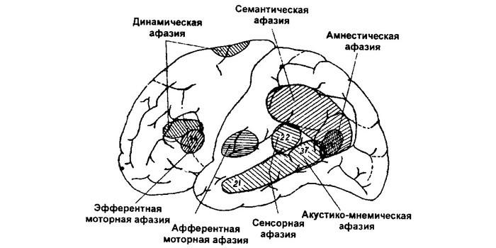 Пораженные участки мозга и афазия