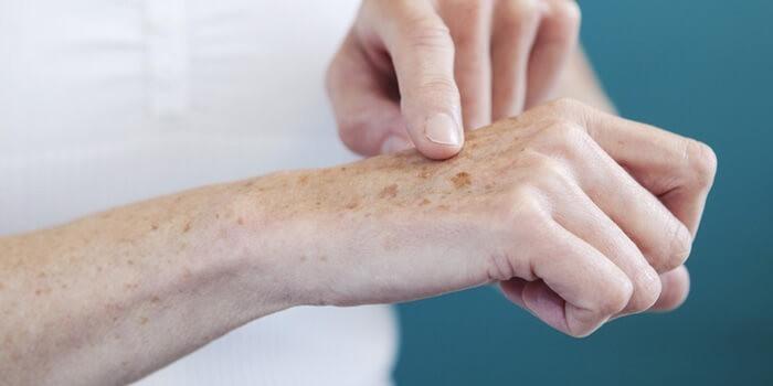 Пигментные пятна на коже руки