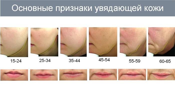 Основные признаки увядающей кожи