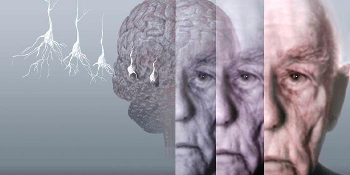 Гибель нейронов