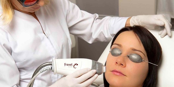 Пациентка на лазерной шлифовке лица