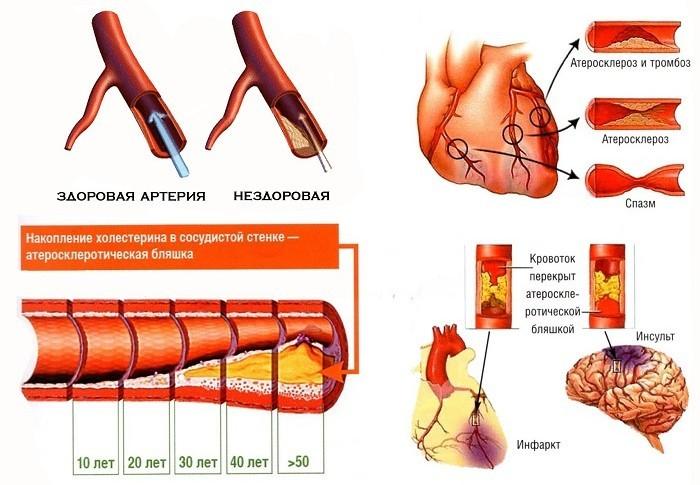 Накопление плохого холестерина на стенках артерий
