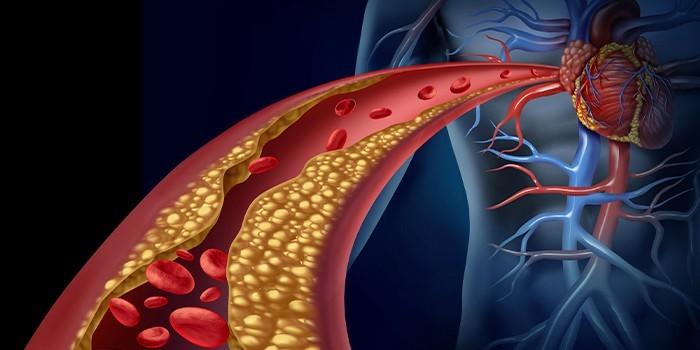 Холестериновые отложения на стенках сосудов
