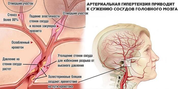 Артериальная гипертензия и сосуды мозга