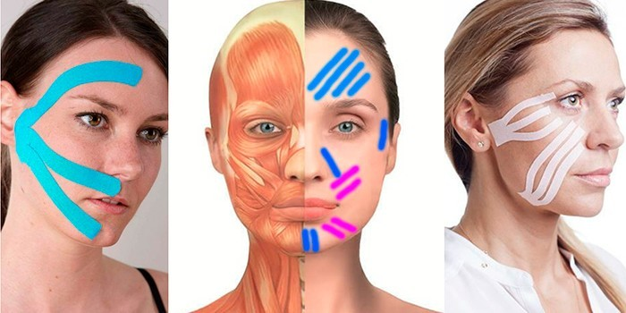 Тейпирование лицевых мышц