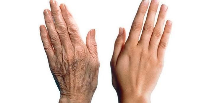 Руки молодой и пожилой женщины