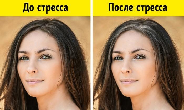 Волосы женщины до и после стрессовой ситуации